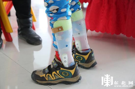 辅助行走的鞋。东北网记者 迟亦达 摄