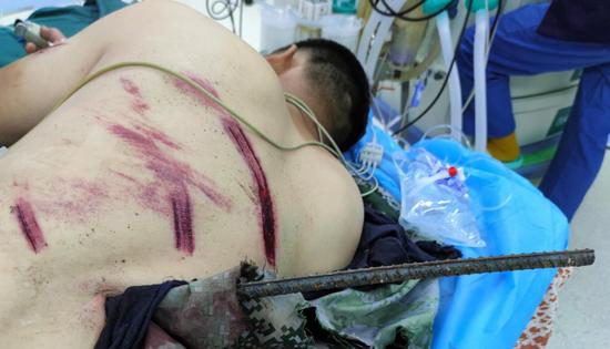 哈尔滨一男子高空坠落 1米多长钢筋从背部贯穿腹部
