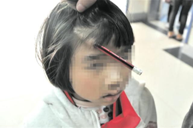 6岁女孩铅笔刺入头部 妈妈赶紧拔出惹上更大麻烦
