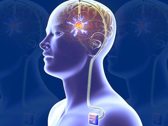 脑起搏器由位于胸口的脉冲发射器、颈部的皮下延长导线,颅内的刺激电极三部分构成