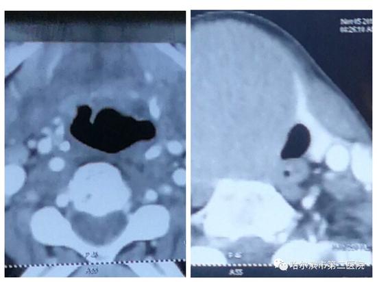 (图左)患者气管位置位于正中 (图右)患者气管位置受压变形,明显偏移