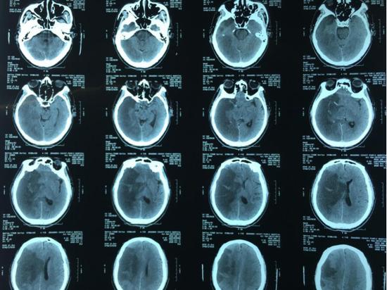 图一,右侧大脑半球大面积脑梗死术前可见大脑中动脉高密征