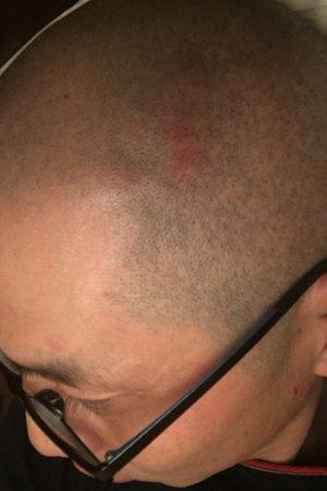 陈先生头部受伤。微博截图