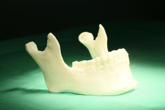 设计修复下颌骨手术在哈医大口腔医院成功完成