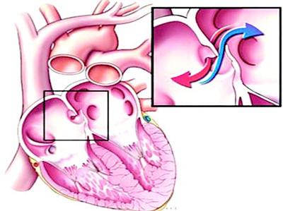心脏卵圆孔未闭示意图