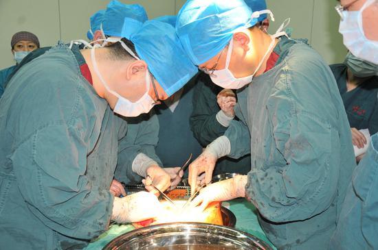 医生对器官进行分离