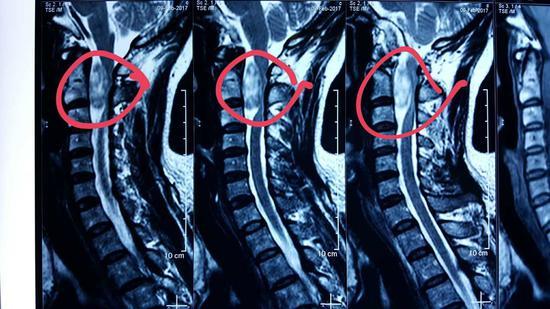 图为患者的核磁影像学检查,圈中为肿物