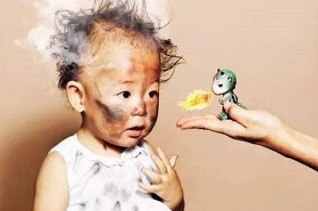 哈尔滨4岁女童窗台玩耍跌进热水锅 尚未脱离生命危险