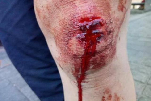 哈市男子打车被拖行百米多处受伤 伤者悬赏1万寻司机