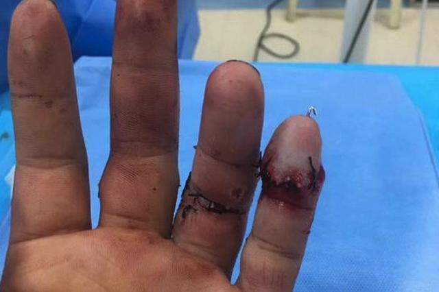 画面瘆人!木匠着急赶活儿两根手指被电锯锯断