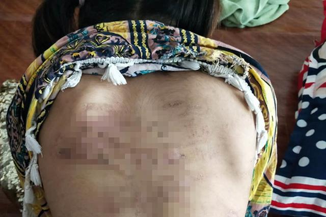 8岁女童遭虐打遍体鳞伤 其父被指一喝酒就打小孩