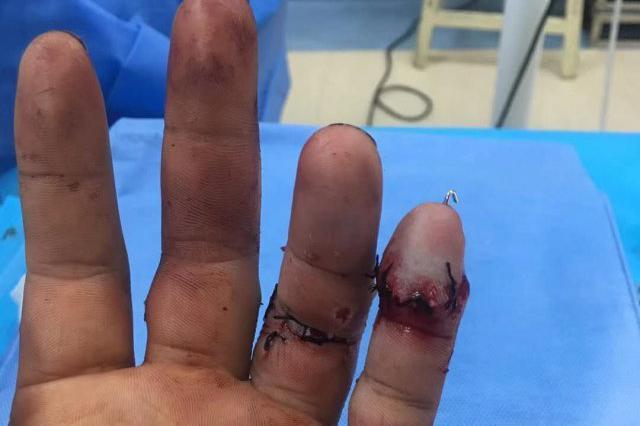 36岁的木匠着急赶活儿 两根手指被电锯锯断