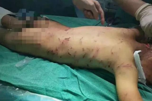 男童被恶犬咬伤 爱狗人士质疑医院公布抢救过程