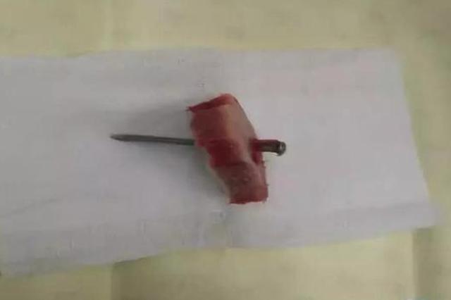哈尔滨女子将6cm钢钉插进脑袋 手术中还发现2根牙签