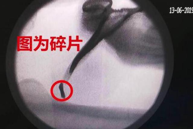 好险!割草机碎片射入男子体内 差点割断股动脉