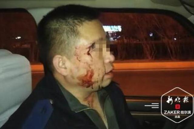乘客车里抽烟 哈尔滨一出租司机开窗放味被6人拳打脚踢