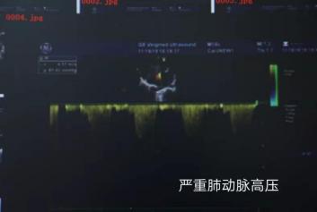 """37男子心脏内暗藏鸡蛋大""""窟窿""""  远东医院心外科成功为其实施""""补心术"""""""