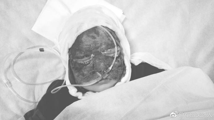 常德男童持打火机钻床底逮老鼠 面部严重烧伤