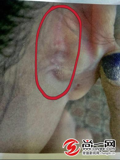 黎女士取耳骨后留下的手术印记。 照片由黎女士本人提供