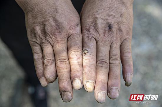 熬制山胡椒油是很辛苦的工作,多年来,蒋艾文靠着这门手艺,供两个小孩上大学,也改善着家里的条件,很累也很值得。