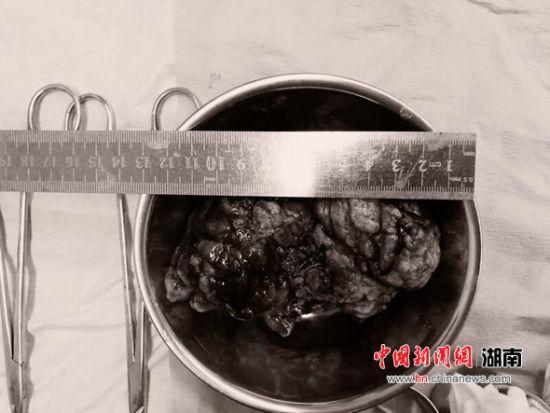 手术中成功切除的巨大脑膜瘤。