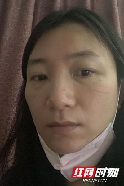 未管所李琼,口罩取下很久后脸上仍有压痕。