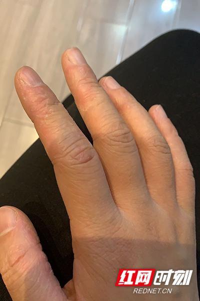 在手套里闷了72小时后,朱泽莉手上长满了水泡。