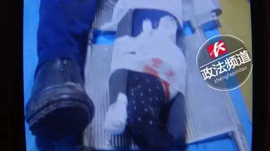 ▲伤者被送往医院