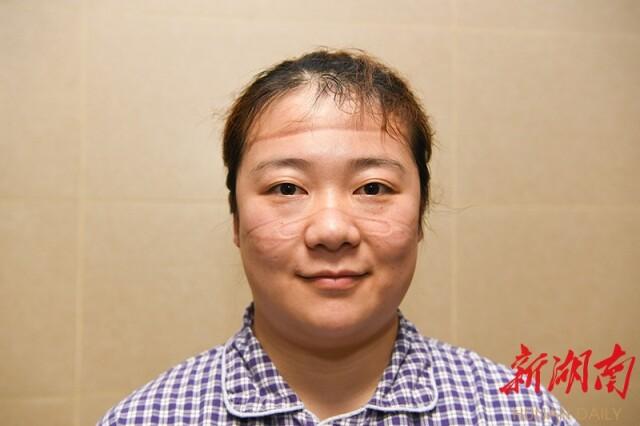 2月2日18时,刚刚走出隔离病房的中南大学湘雅医院主管护师苏斯脸上布满勒痕
