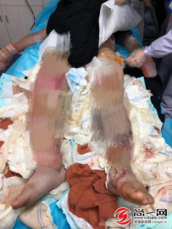 陈中云的双下肢被重度烧伤。尚一网记者 曾兰 摄