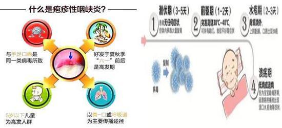 图2疱疹性咽峡炎的发病特点