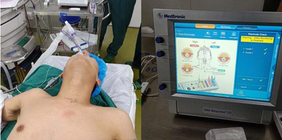 郴州完成首例术中喉返神经监测下甲状腺肿瘤切除术