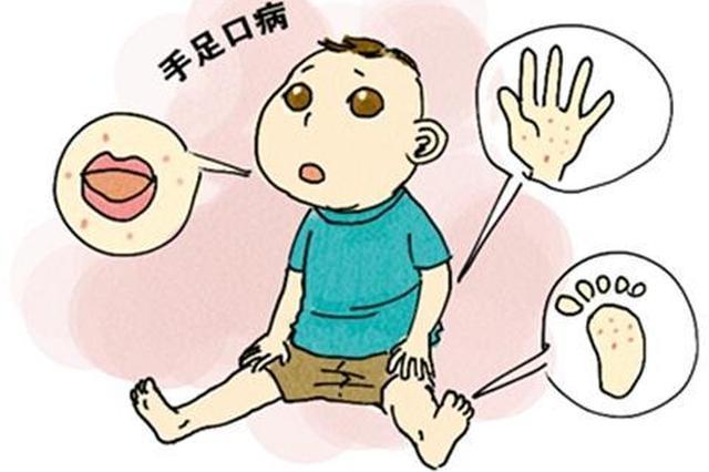 4到6月是手足口病夏季流行高峰 高发注意防范