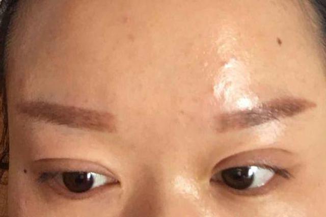 株洲俩女子花上万割双眼皮不敢见人 医院:没有失败