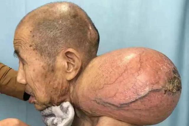 """驚!常德一""""雙頭人""""頸部長了個7斤4兩的腫瘤"""