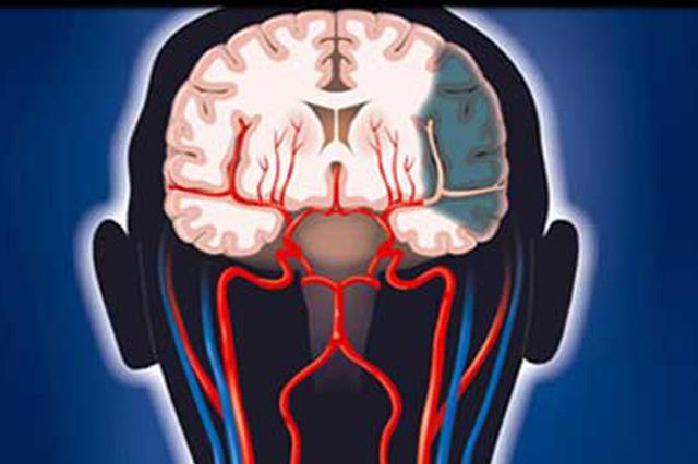 長沙62歲老人服用降壓藥不規律 導致突發中風