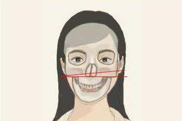 湖南20岁鹅蛋脸美女却下巴歪斜 竟是因为这个习惯导致