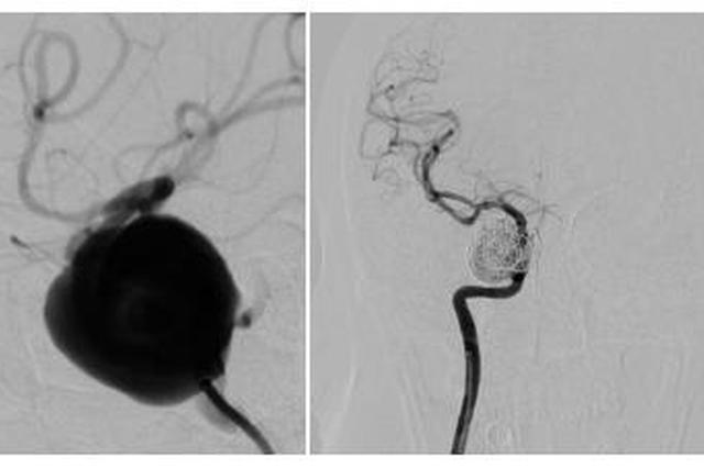 五旬女子视力下降原来是动脉瘤 专家团队2mm伤口即可切除