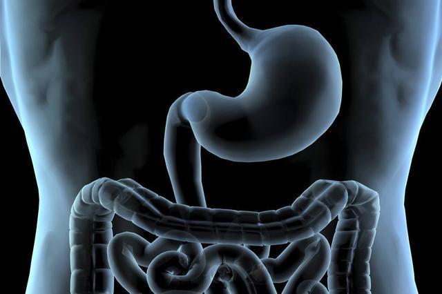 """湘乡一男孩肚子疼 竟是因为体内多了根""""肠子"""""""