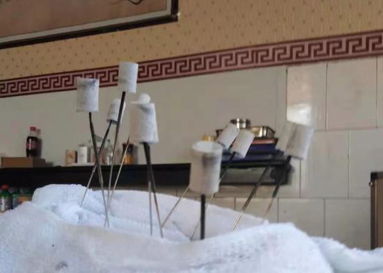 患者提供的针灸图片,上面都裹着艾灸条