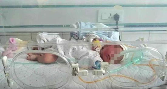↑被遗弃的女婴正在接受治疗 警方供图