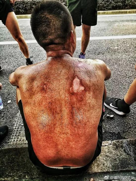 这是一位1997年出生的消防兵,他叫沈伍呷,因体能训练背部受了伤。