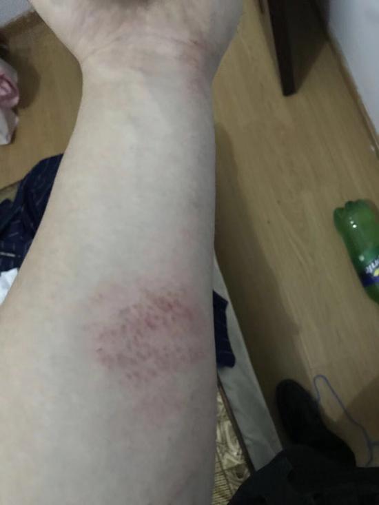 王榆钧双手胳膊被现场栏杆刮出多处伤痕