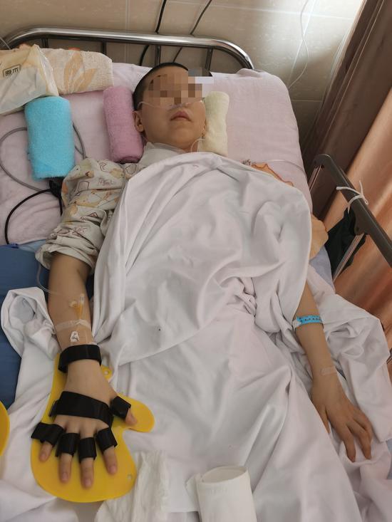 蹦床摔伤的90后女研究生经治疗四肢已有知觉