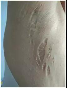 刘畅皮肤皲裂的照片 图据刘畅发布的文章