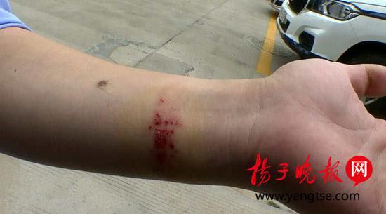 交警摔倒后受伤。
