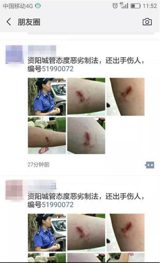 """9月11日资阳人的朋友圈,被一条""""城管执法出手伤人""""的信息刷了屏。本文图均为 封面新闻 图"""
