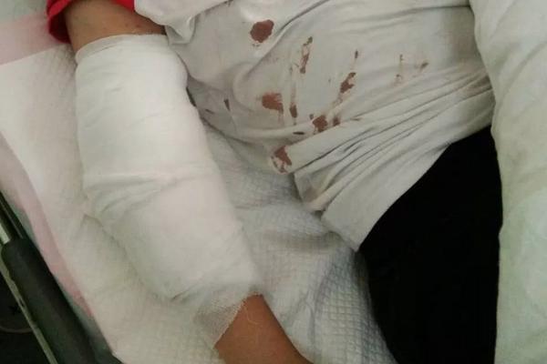 杭州一女子因工资补贴娘家 被打到住院16天