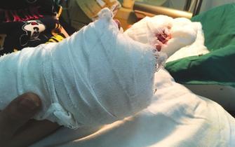 常熟一2岁男童手指被绞断