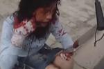 女子摔倒路边浑身是血 被扶起后反复称要上班